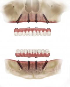 full arch implants teeth on 4