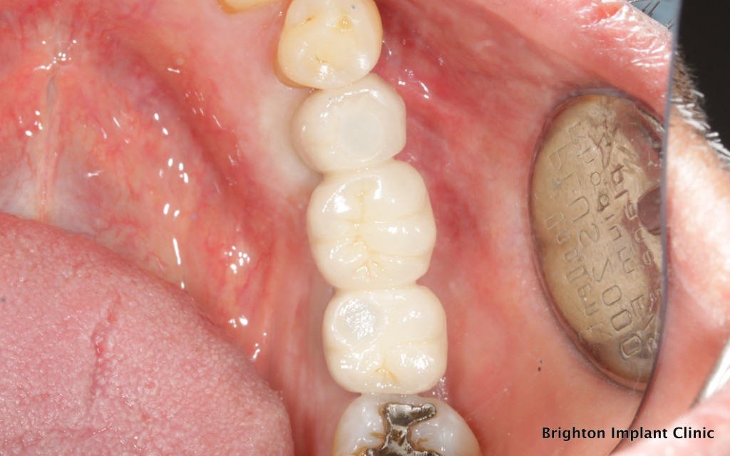 Bridgework fitted on implants