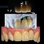 Close up view of implant crowns