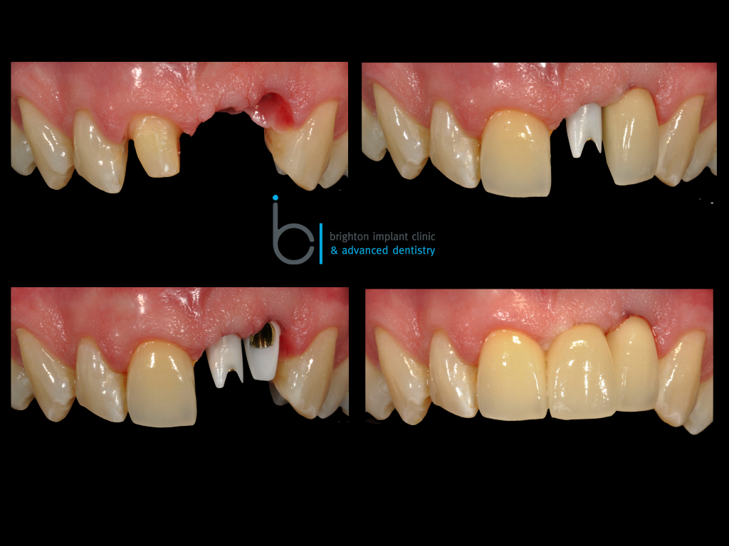 Stages of dental implant treatment