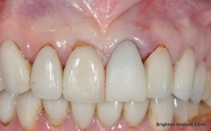 How long does dental implant treatment take