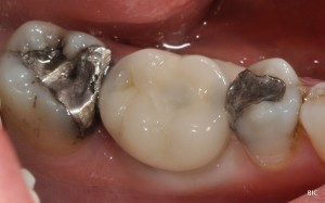 screw retained crown finally in position