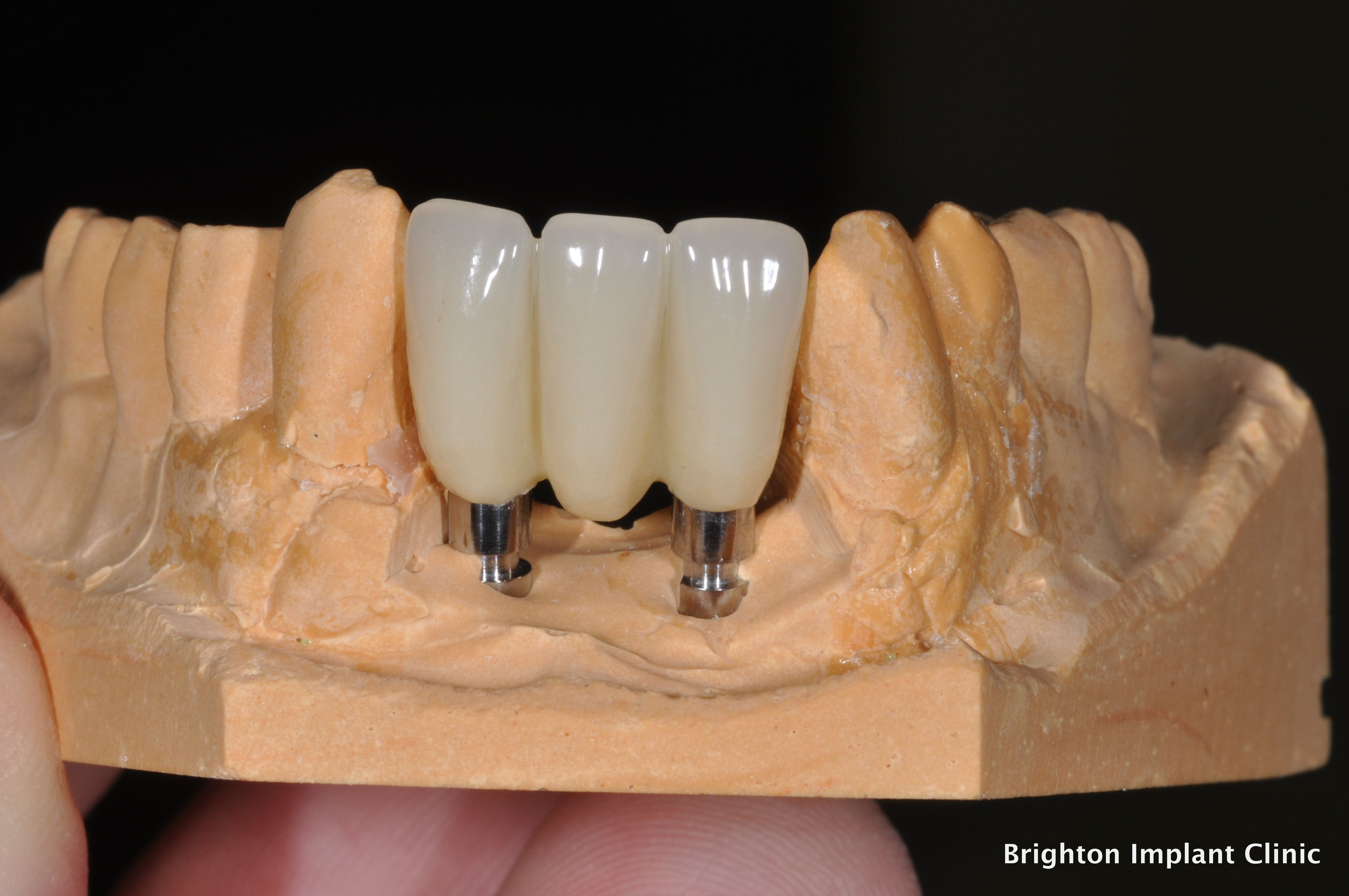 3 lower incisor teeth provisional bridge