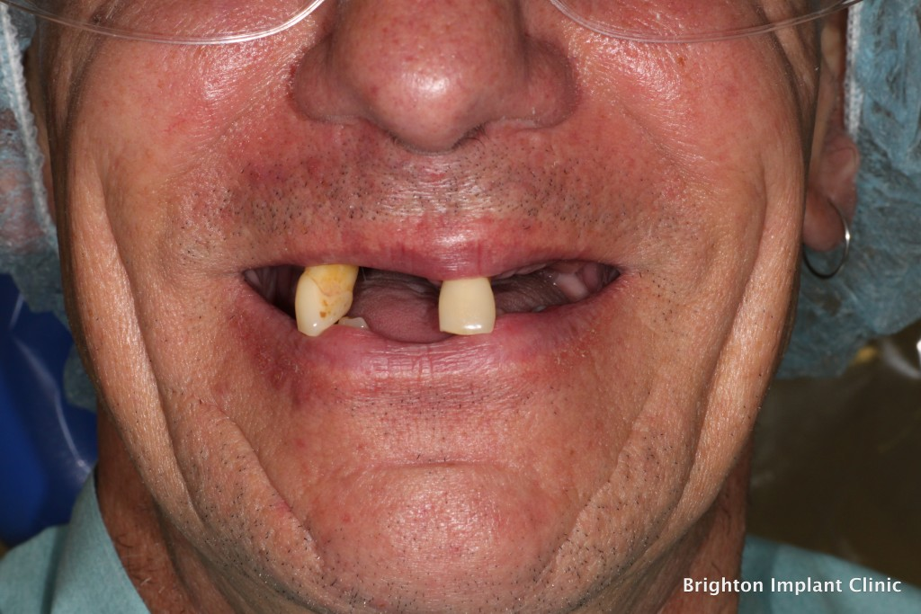 advanced gum disease with multiple missing teeth