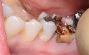 Molar Dental Implant