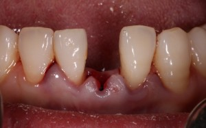 replacement of retained milk tooth