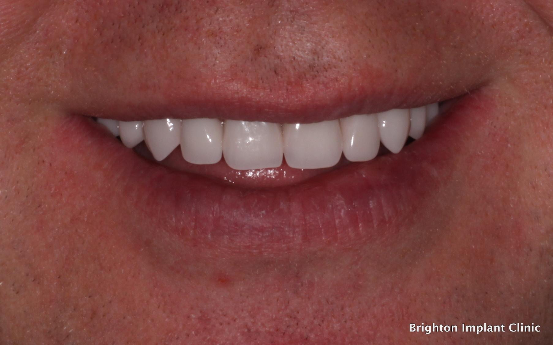 Upper & Lower Teeth-on-4