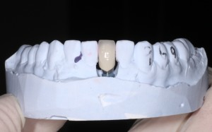 The new implant crown