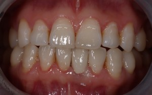 The final crown is cemented in position for replacement of retained milk tooth