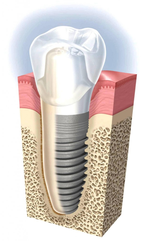 Implant Dentist in the UK