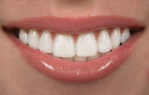 cosmetic porcelain veneers