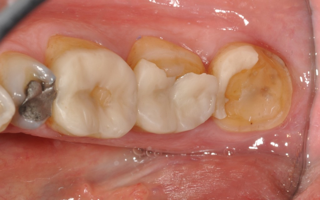 broken tooth colored restorations