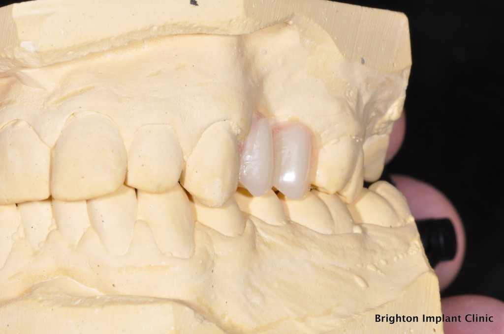 artificial teeth on plaster model showing size of new teeth