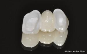 Zirconia Dental Bridges