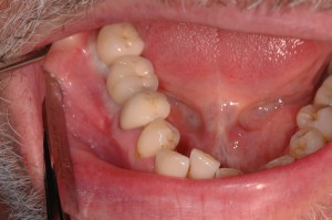 Cement retained crowns in the mouth
