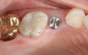 What Is A Screw Retained Crown?