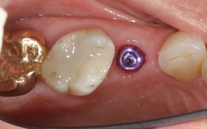 Screw Retained Crown