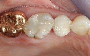 screw retained crown in position