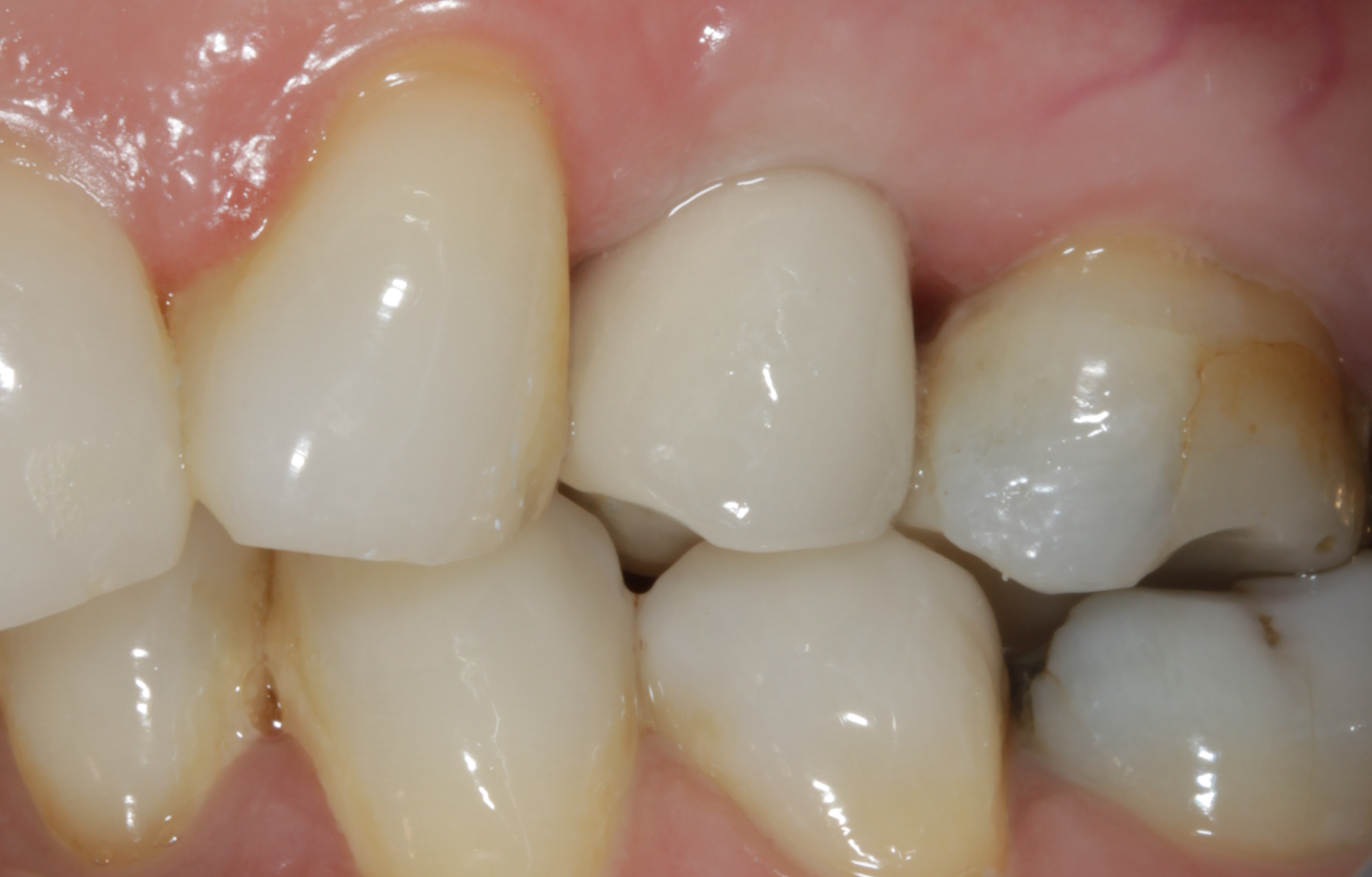 close up of dental implant crown
