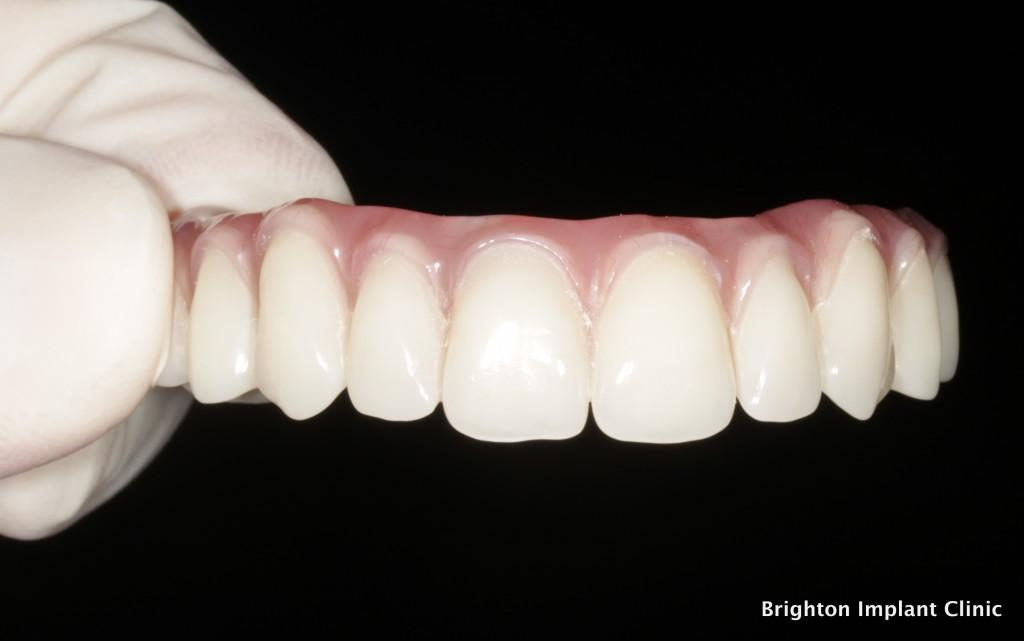 Upper fixed Teeth-on-4 bridge