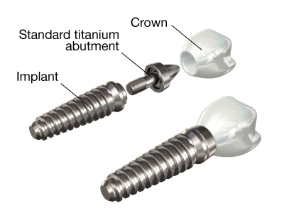 Implant abutment crown