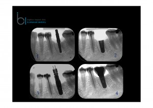 dental implant treatment radio-graphs