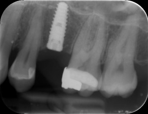 two stage implant, no abutment is attached, just the implant is in place