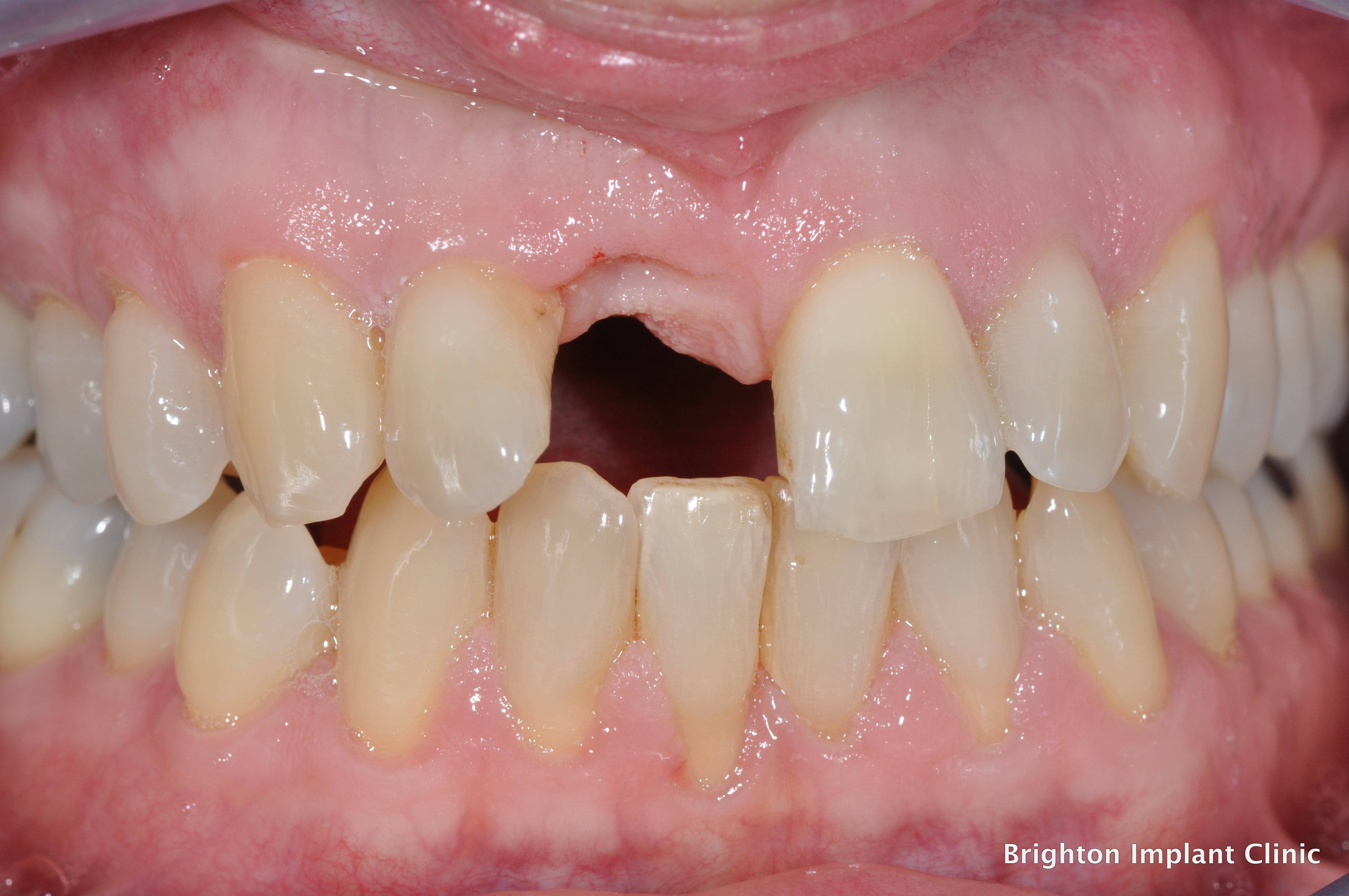 Dental implants can replace missing teeth