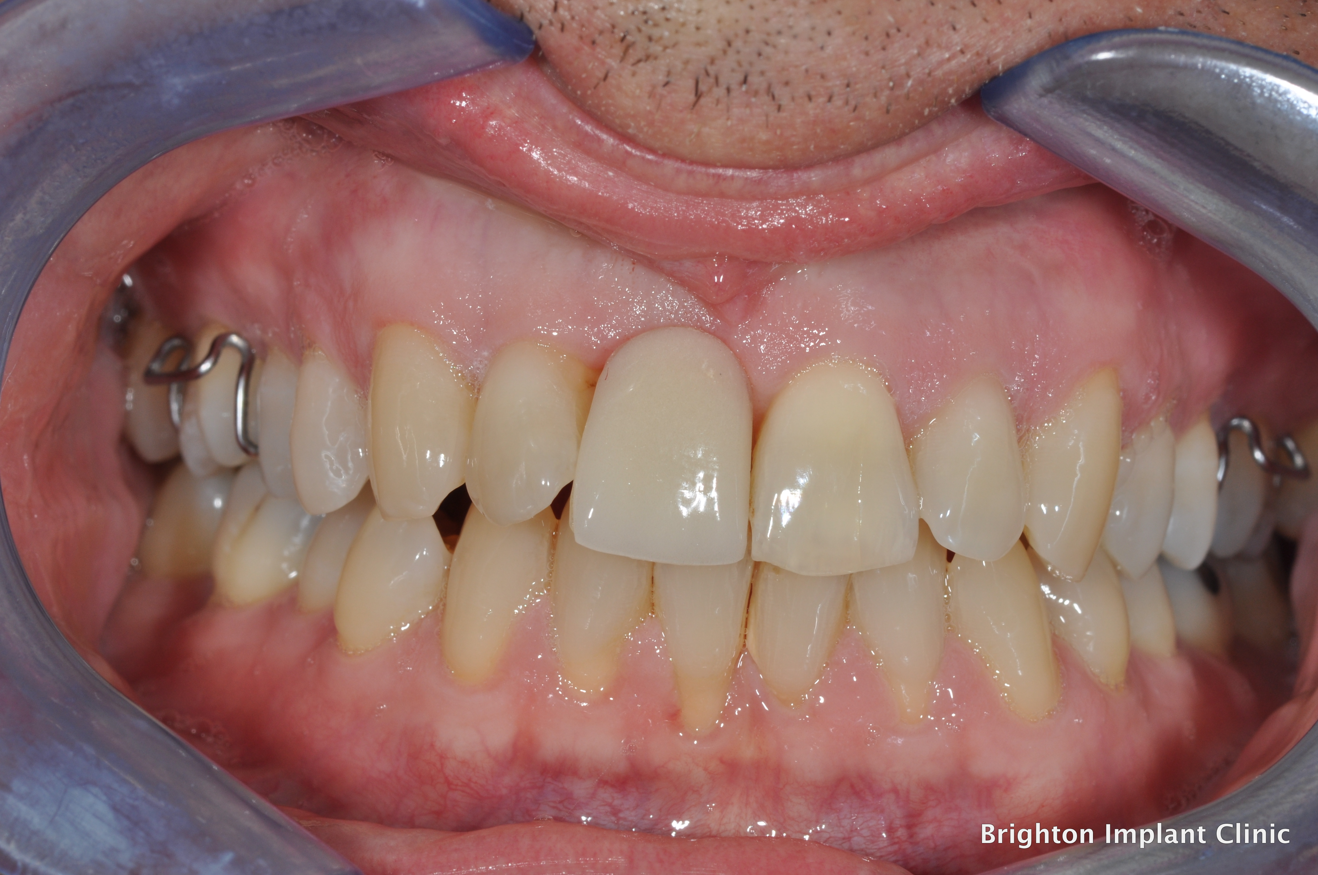 Upper right central incisor replaced with a temporary denture