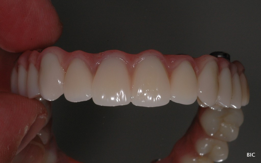 Fixed bridge on dental implants Teeth-on-4 dental implant bridge