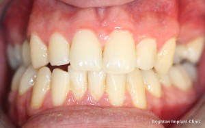 Before photo of dental implants case