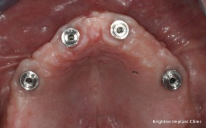 Solving Dental Implants Problems
