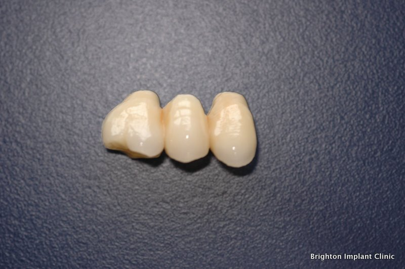A 3- unit bridge replacing two premolars and one molar