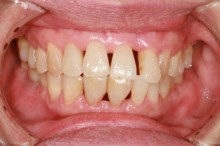 Periodontists with gum recession