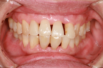 Periodontitis with gum recession
