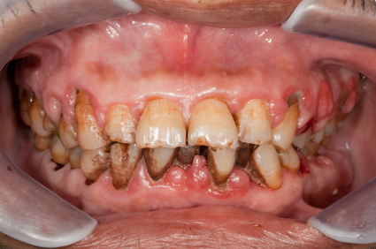 Gingivitis How You Can Prevent It Dental Implants