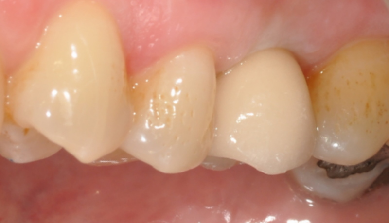 Cosmetic dentistry showing new dental implant crown in position