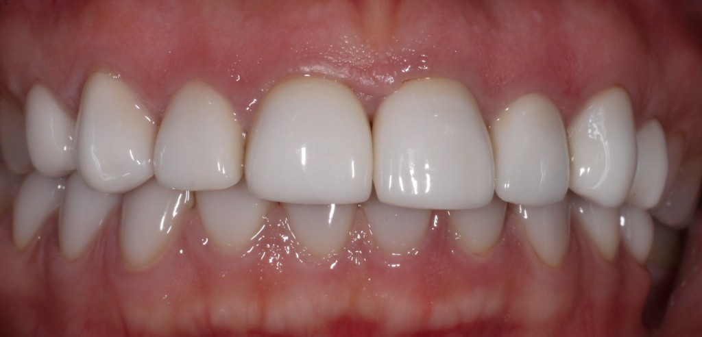 Porcelain veneers can be used to correct tooth discoloration caused by tetracycline staining