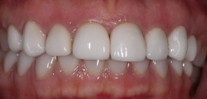 Treatment of Tetracycline tooth discolouration using porcelain veneers