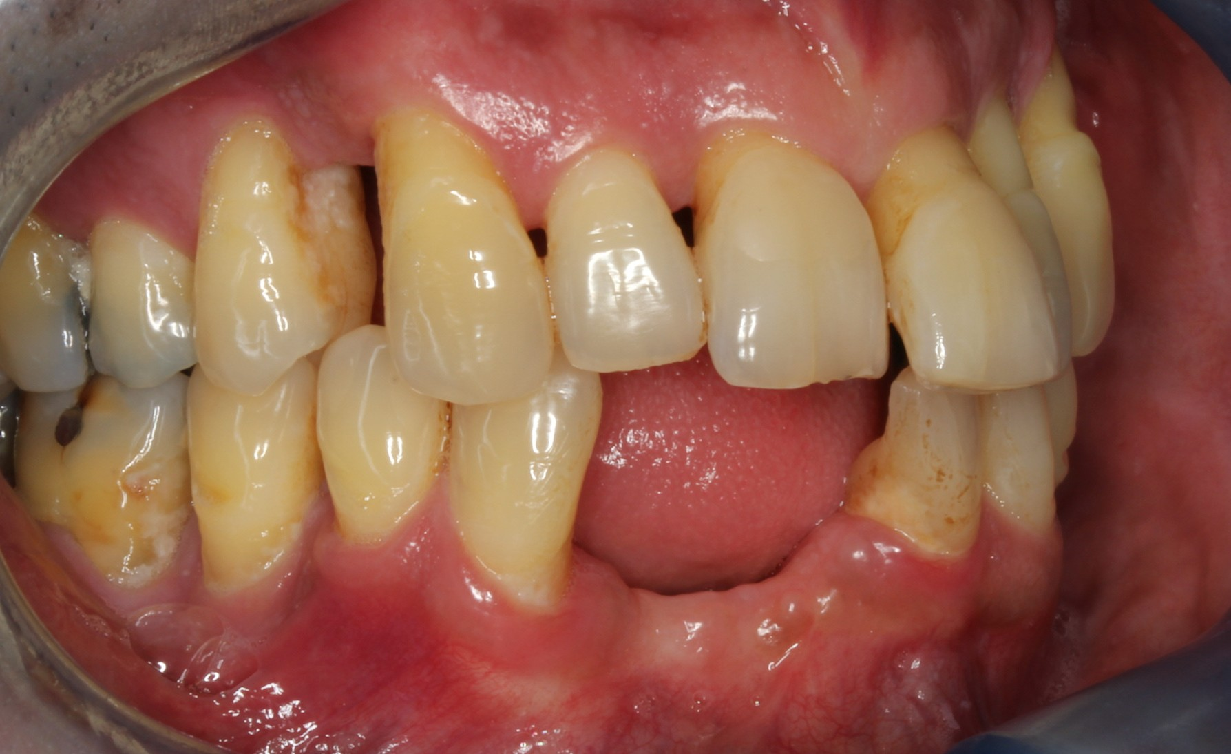 patient presented with tooth caused by sinus infection right aspect