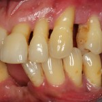 patient presented with tooth caused by sinus infection left aspect
