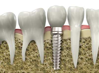 Dental implant placed into the jaw bone