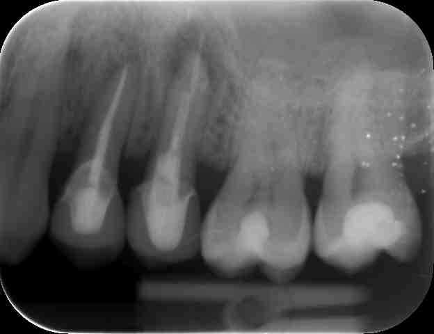 before radiographs before dental implant treatment