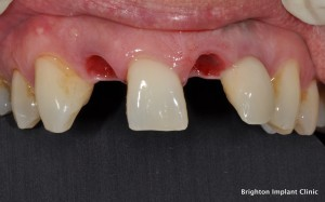 Dental Implant Teeth