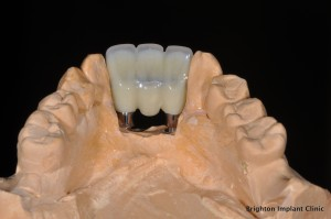 3 unit provisional acrylic bridge on dental implants