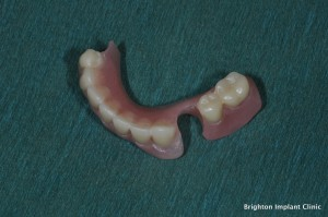 partial lower denture False Teeth