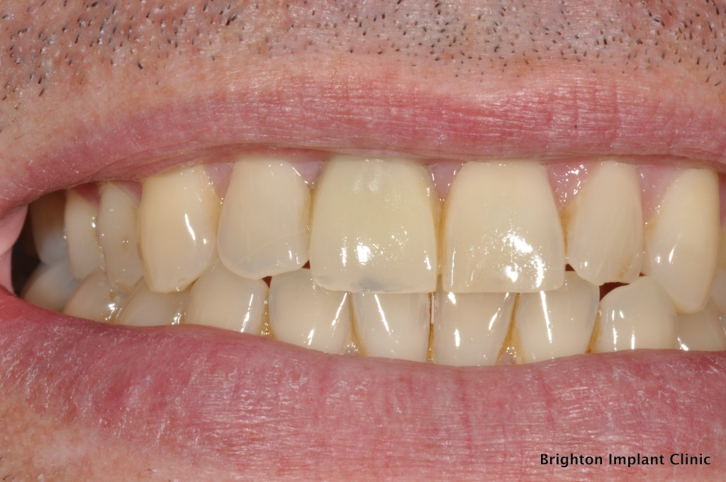 upper right central tooth replaced with dental implant