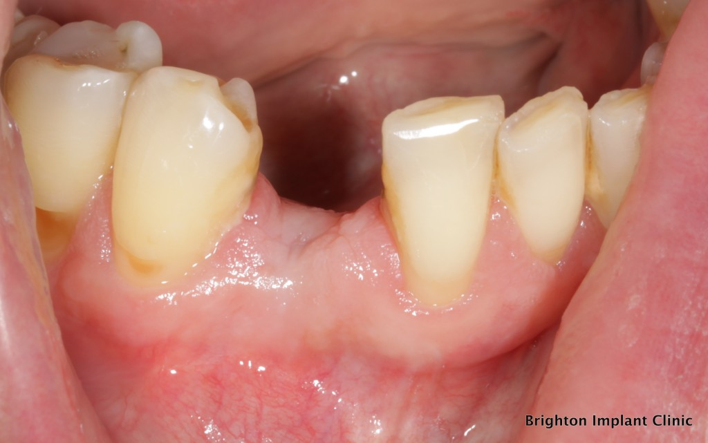 before picture of area prior to dental implant placement