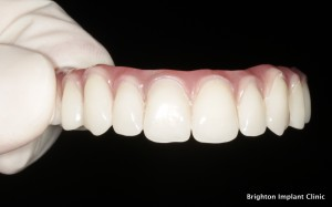teeth on 4 dental implant bridge
