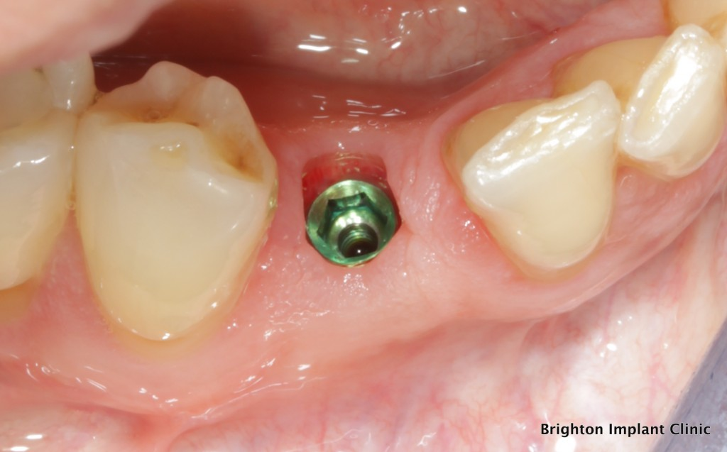 legacy2 dental implant in position